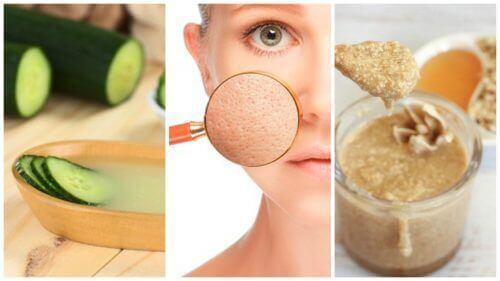 Зменшіть пори за допомогою цих п'яти природних засобів