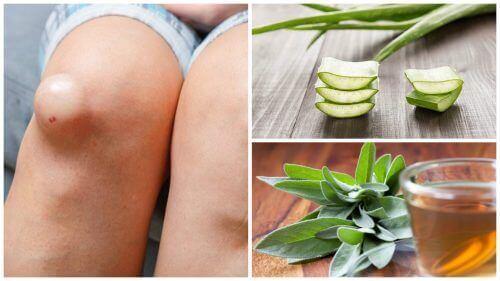 5 найкращих засобів для зменшення набряку на колінах