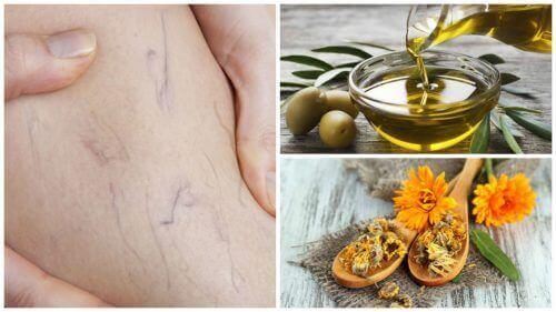 Засіб з оливковою олією і нагідками проти варикозного розширення вен