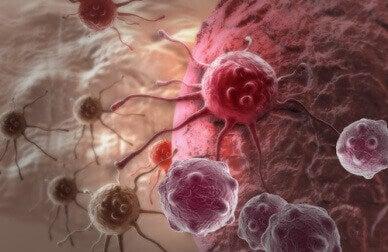 діагностування раку на ранніх стадіях