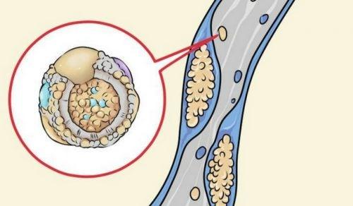 як знизити рівень холестерину