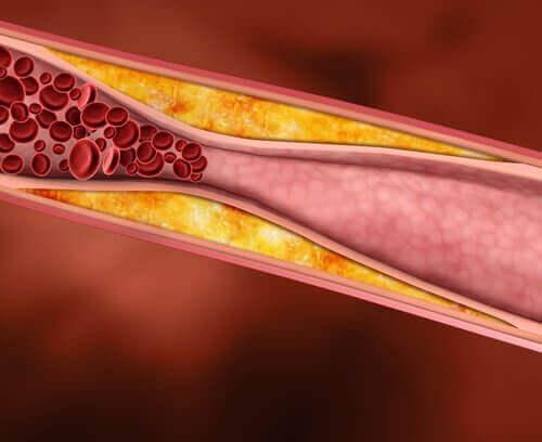 апельсинова шкірка знижує рівень холестерину