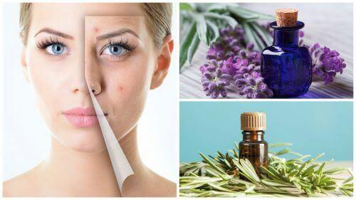 6 чудових ефірних олій, щоб очистити шкіру від акне