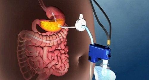 Нова техніка лікування ожиріння без хірургії