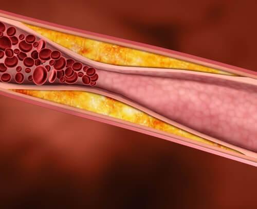 високий рівень холестерину через гіпотиреоїдизм