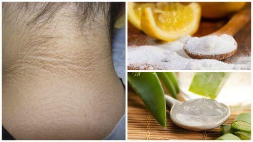 Пігментні плями на шиї: 5 процедур, щоб їх позбутися