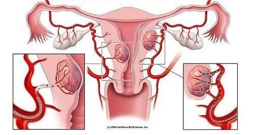 Міома матки: 7 перших симптомів