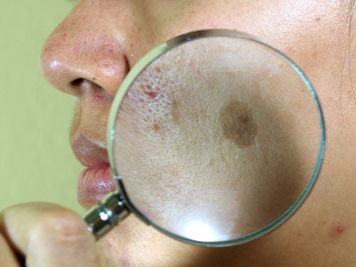 7 натуральних засобів від пігментних плям