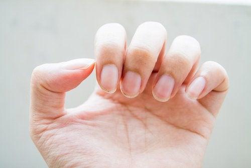 слабкі нігті можуть свідчити про проблеми з кишківником