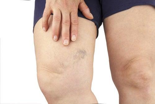 затримка рідини в ногах