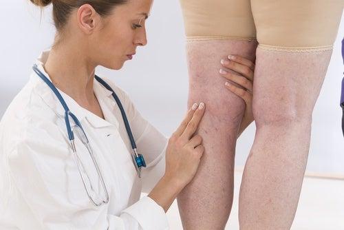 Затримка рідини під час ниркової недостатності