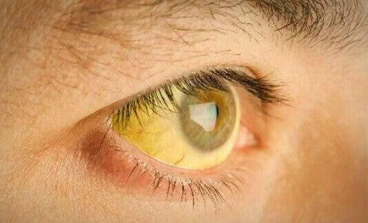 жовтяниця - результат надлишка токсинів у печінці