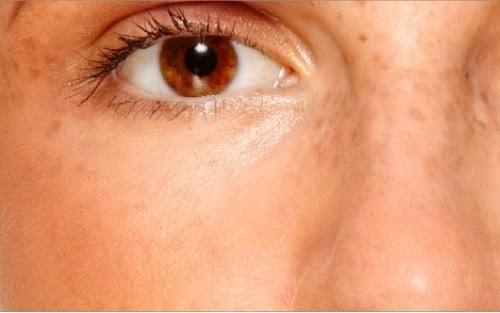 ластовиння та інші симптоми синдрому полікістозних яєчників