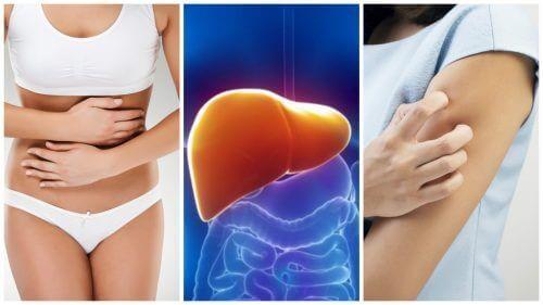8 симптомів перевантаження печінки токсинами