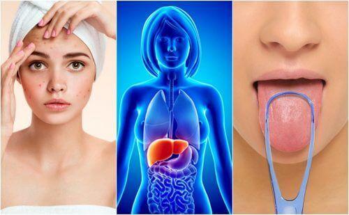 7 ознак того, що печінка перевантажена токсинами
