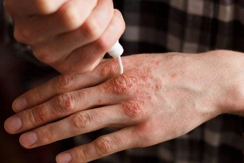 Натуральні креми для лікування псоріазу: 6 рецептів