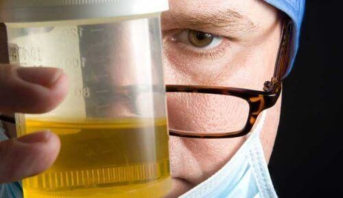 8 причин, чому ваша сеча погано пахне