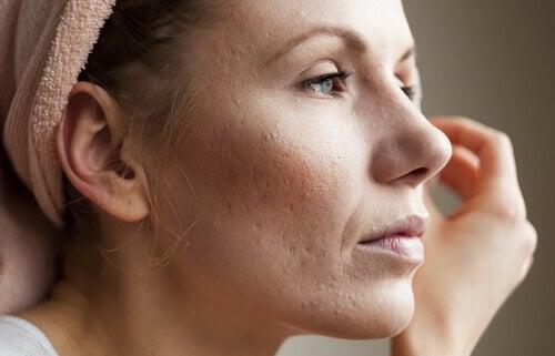 шкіра і кортизол