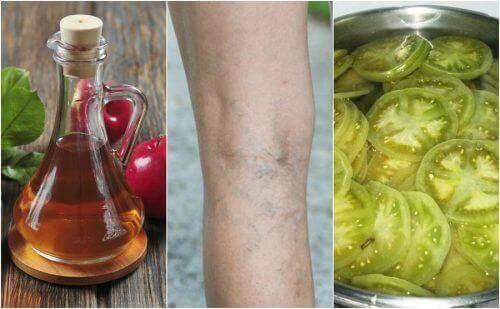 Засіб з оцтом і зеленими помідорами для лікування варикозу