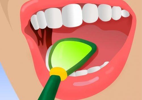 Поганий запах із рота: 5 геніальних хитрощів