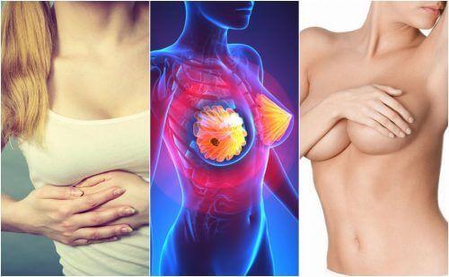 Симптоми раку молочної залози, про які всі жінки мають знати