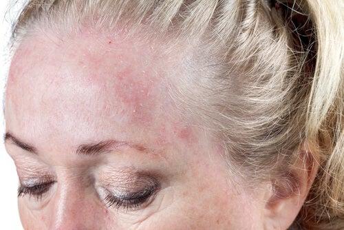 сон з мокрим волоссям й інфекції