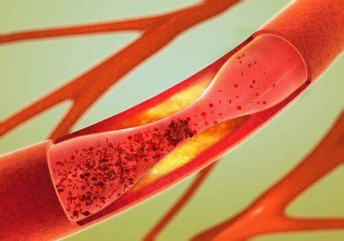 12 найкращих продуктів, щоб розблокувати артерії