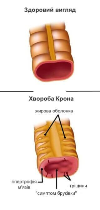 хвороба крона