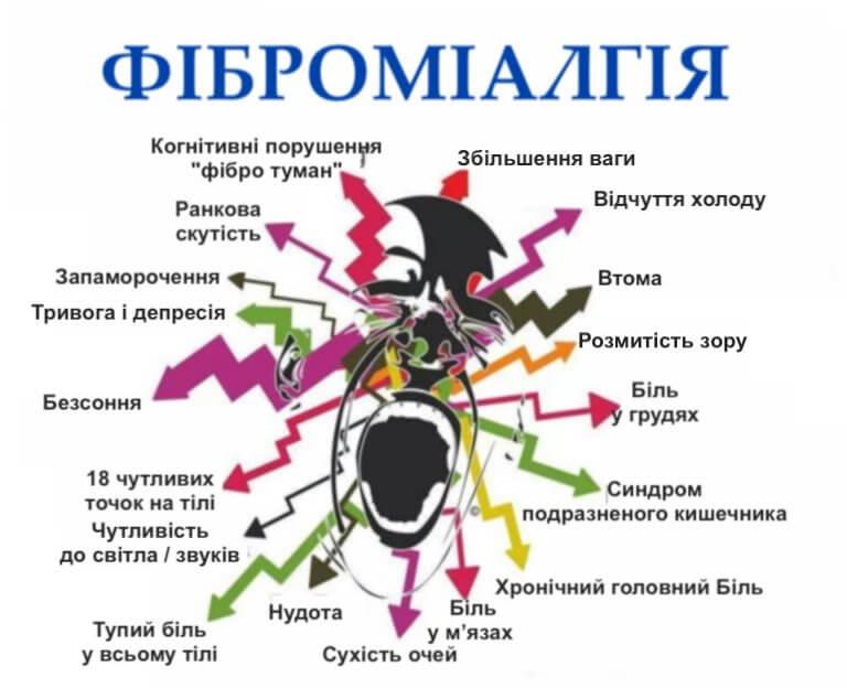 ознаки фіброміалгії