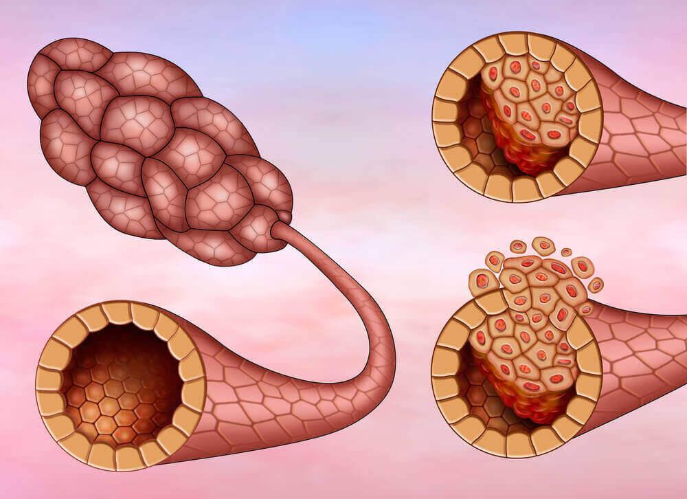 більше про рак грудей