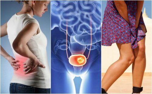 Рак сечового міхура і його 7 основних ознак