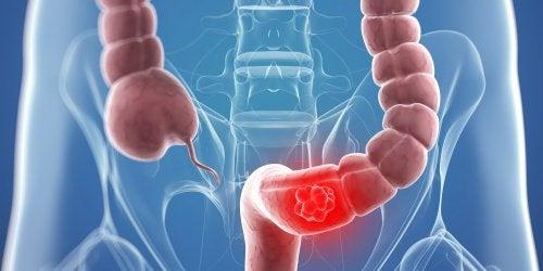 9 натуральних засобів для боротьби з раком товстої кишки