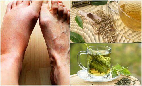 5 домашніх засобів для зниження рівня сечової кислоти