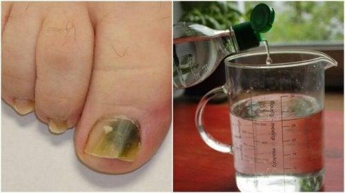 Натуральні засоби для боротьби з грибком нігтів