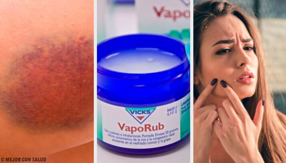 11 дивовижних способів використання мазі Vicks VapoRub