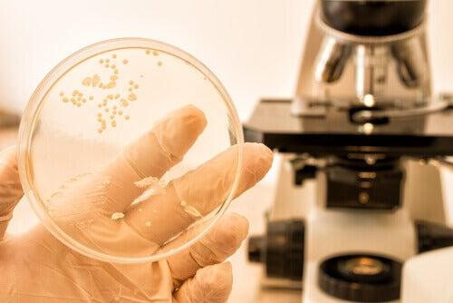 мікроскопічна діагностика важлива, щоб правильно лікувати кандидоз