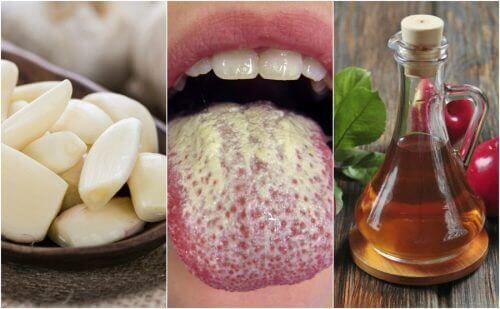 6 натуральних засобів для профілактики кандидозу