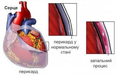 системний червоний вовчак спричиняє перикардит