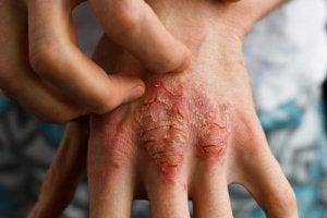 Як лікувати псоріаз