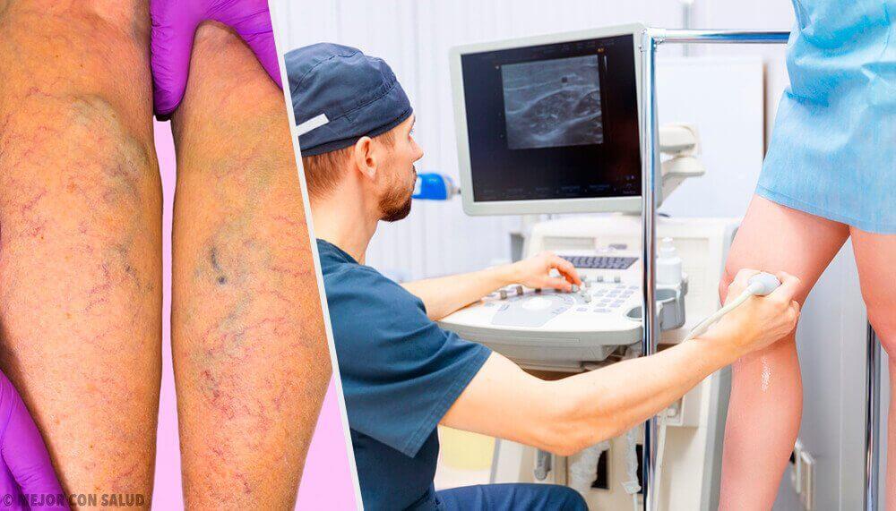 Натуральні місцеві та пероральні способи лікування варикозу