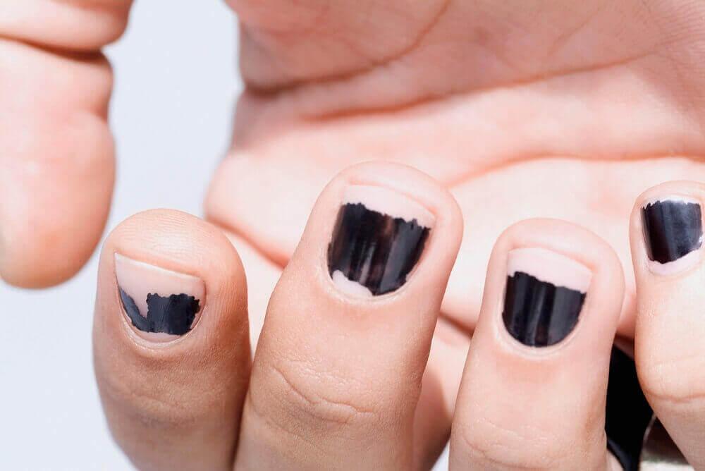 поширені причини ламкості нігтів