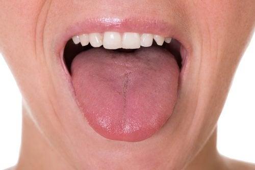 Перші п'ять ознак раку язика