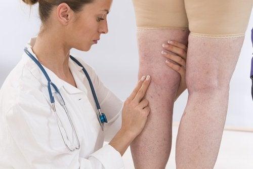 лікарка перевіряє здоров'я ніг