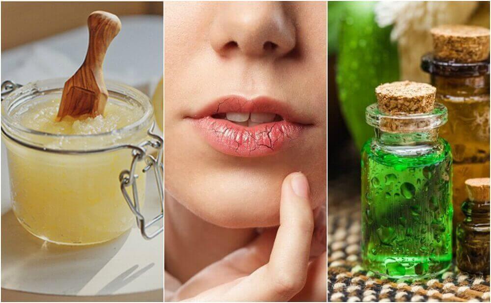 Як уникнути тріскання губ і загоїти рани