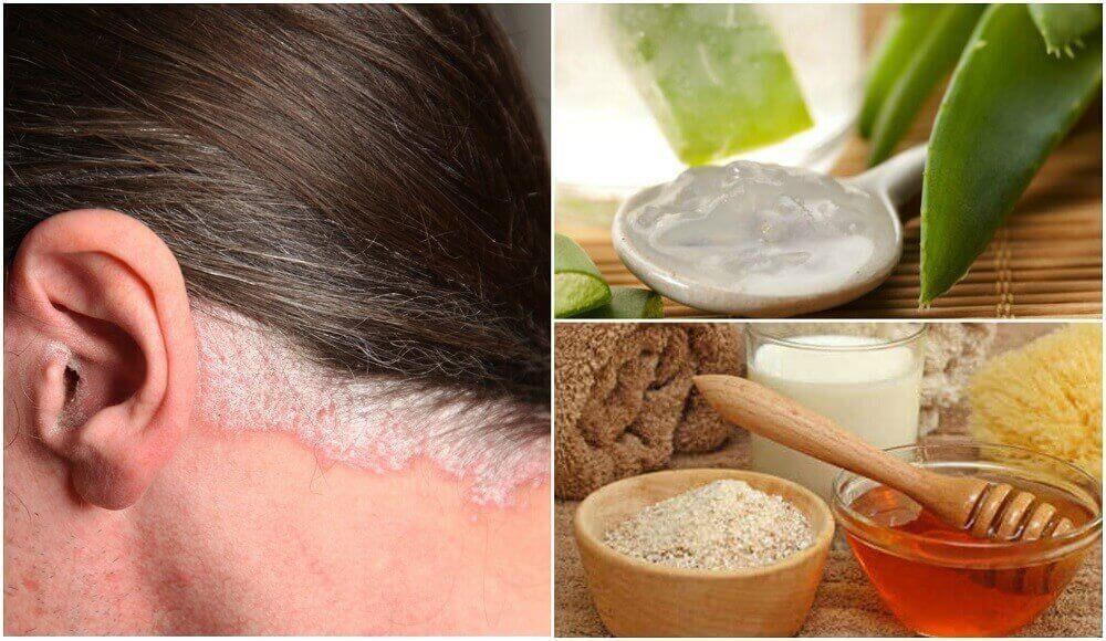5 домашніх засобів для лікування псоріазу шкіри голови