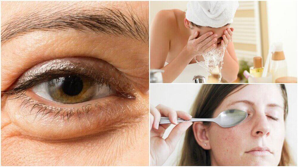 6 природних способів зменшити мішки під очима