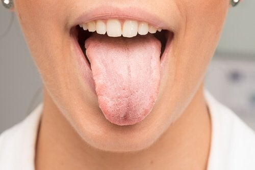 Що є причиною появи білого кольору на язику