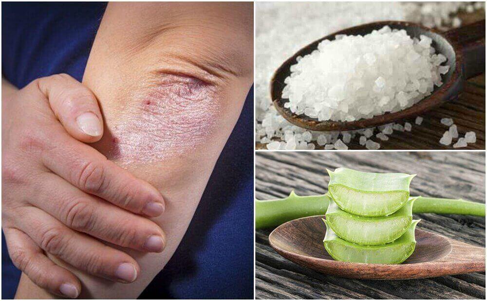 5 засобів для лікування грибка шкіри