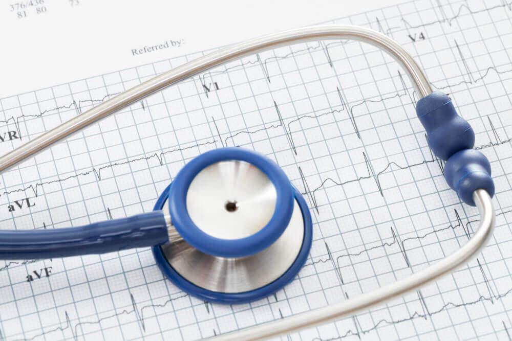 кардіограмма