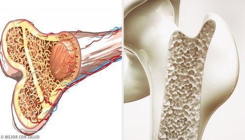 вправи проти втрати кісткової маси